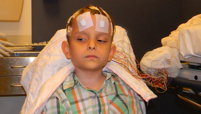Ivan getting an EEG